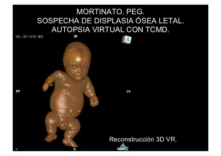 MORTINATO. PEG.SOSPECHA DE DISPLASIA ÓSEA LETAL.   AUTOPSIA VIRTUAL CON TCMD.                Reconstrucción 3D VR.