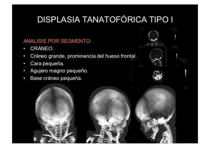 DISPLASIA TANATOFÓRICA TIPO IANALISIS POR SEGMENTO:• CRANEO:• Cráneo grande, prominencia del hueso frontal.• Cara peque...