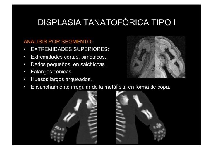 DISPLASIA TANATOFÓRICA TIPO IANALISIS POR SEGMENTO:• EXTREMIDADES SUPERIORES:• Extremidades cortas, simétricos.• Dedos ...
