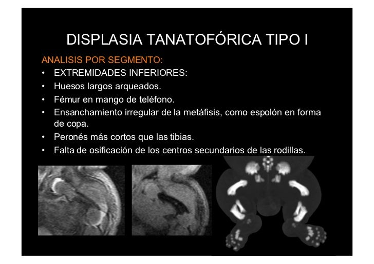 DISPLASIA TANATOFÓRICA TIPO IANALISIS POR SEGMENTO:• EXTREMIDADES INFERIORES:• Huesos largos arqueados.• Fémur en mango...