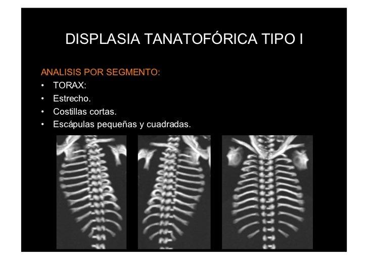 DISPLASIA TANATOFÓRICA TIPO IANALISIS POR SEGMENTO:• TORAX:• Estrecho.• Costillas cortas.• Escápulas pequeñas y cuadra...