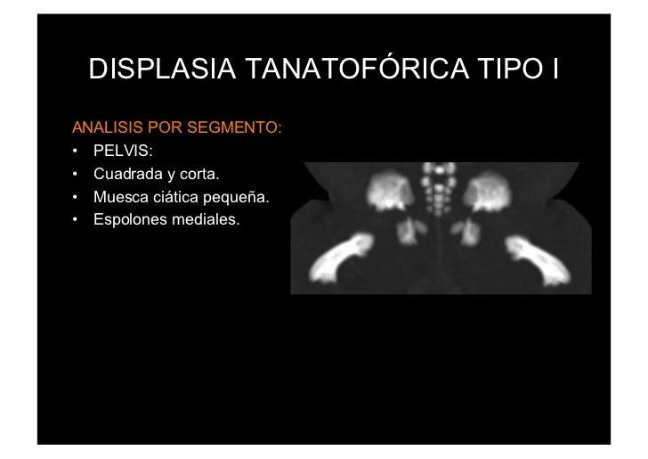 DISPLASIA TANATOFÓRICA TIPO IANALISIS POR SEGMENTO:• PELVIS:• Cuadrada y corta.• Muesca ciática pequeña.• Espolones me...