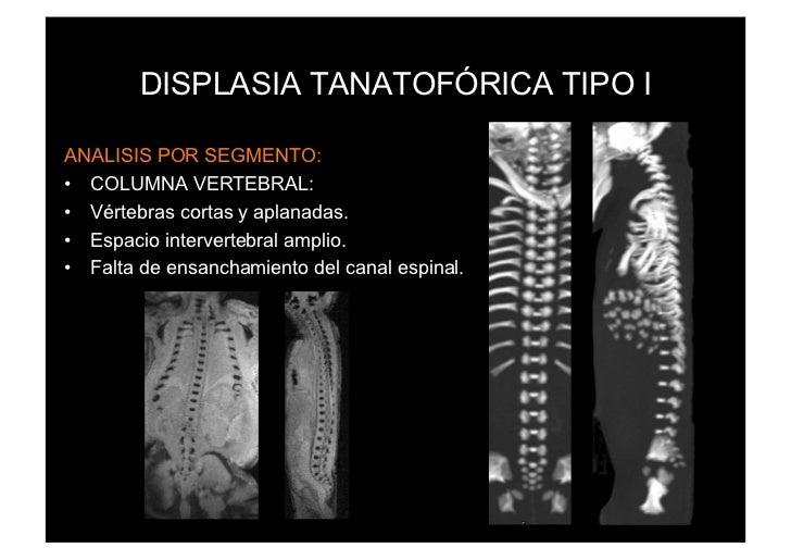 DISPLASIA TANATOFÓRICA TIPO IANALISIS POR SEGMENTO:• COLUMNA VERTEBRAL:• Vértebras cortas y aplanadas.• Espacio interve...