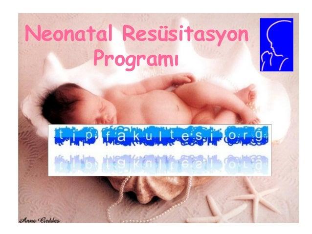 Neonatal Resüsitasyon Programı