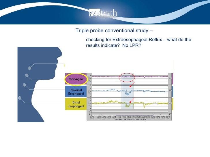 <ul><li>Triple probe conventional study –  </li></ul><ul><ul><li>checking for Extraesophageal Reflux – what do the results...