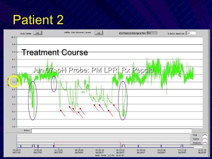 Patient 2 <ul><li>Treatment Course </li></ul><ul><ul><li>Jun 07: pH Probe: PM LPR; Rx Pepcid </li></ul></ul>