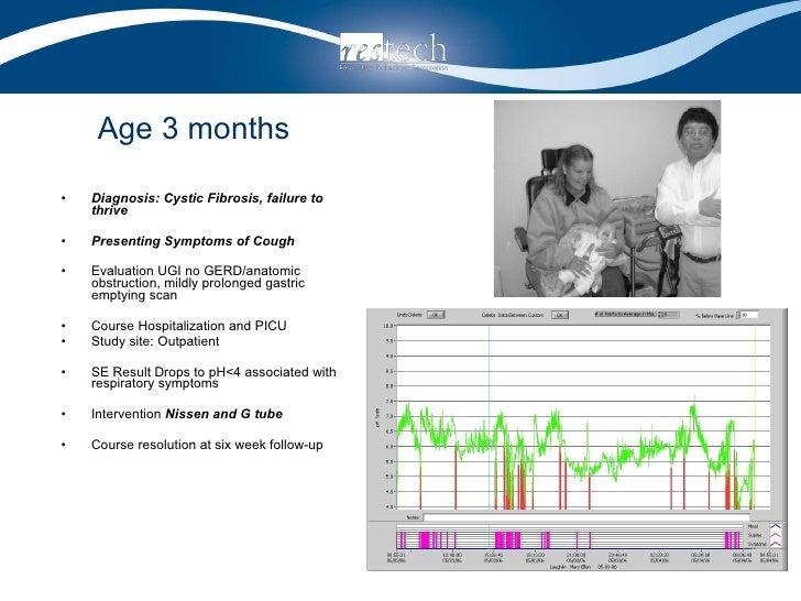 Age 3 months <ul><li>Diagnosis: Cystic Fibrosis, failure to thrive </li></ul><ul><li>Presenting Symptoms of Cough </li></u...