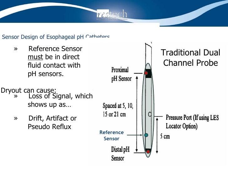 Sensor Design of Esophageal pH Catheters   Reference Sensor <ul><ul><li>»  Reference Sensor    must  be in direct    fluid...