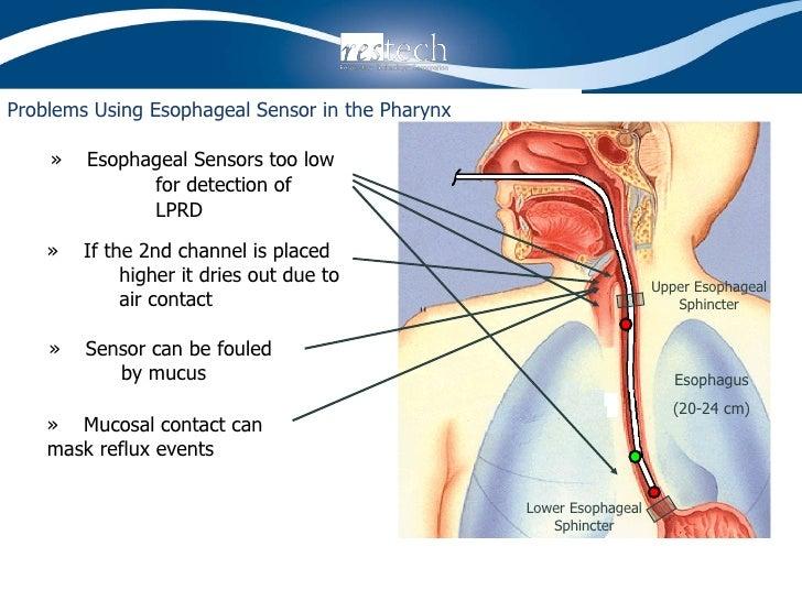 Problems Using Esophageal Sensor in the Pharynx <ul><li>»  Esophageal Sensors too low for detection of LPRD </li></ul>Esop...