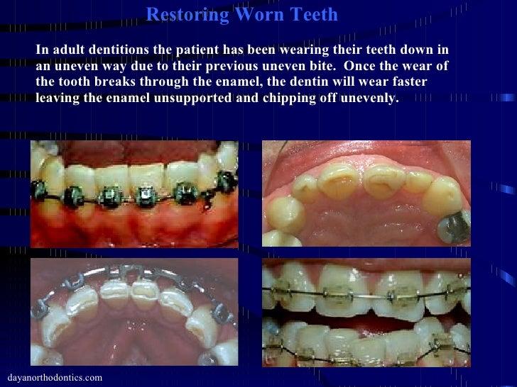 restoring worn chipped broken teeth