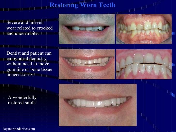 broken teeth on gums