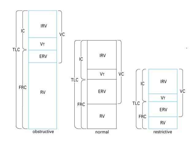 Parenchymal RLD Extraparenchymal RLD FVC Decreased Decreased MVV Normal Decreased DLCO Decreased Normal FVC: Forced Vital ...