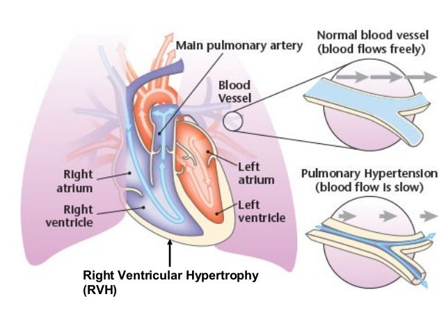 4 restrictive lung diseases right ventricular hypertrophy rvh 9 ipf stiff lungs ccuart Choice Image