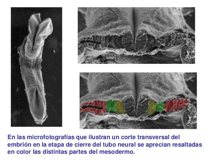 En las microfotografías que ilustran un corte transversal delembrión en la etapa de cierre del tubo neural se aprecian res...