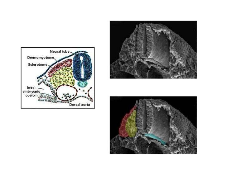 En la zona dorsolateral restante se desarrolla por su parte medialel miotoma donde se originan los músculos del tronco y l...