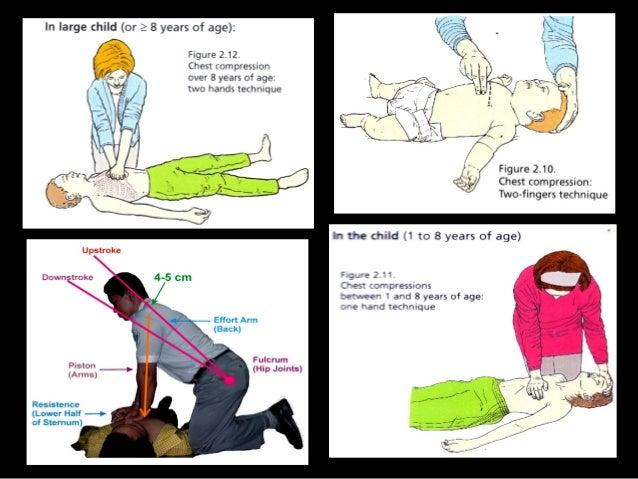 Cpr abdominal thrust - 2 9