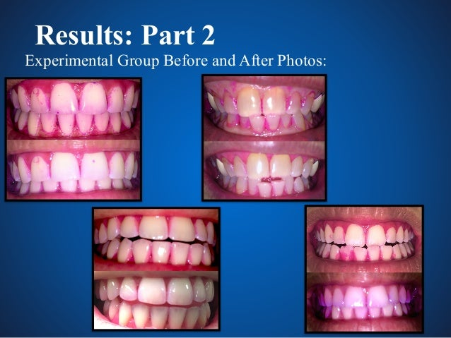 Resveratrol A Novel Antiseptic For Oral Hygiene Products