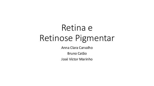 Retina e Retinose Pigmentar Anna Clara Carvalho Bruno Catão José Víctor Marinho