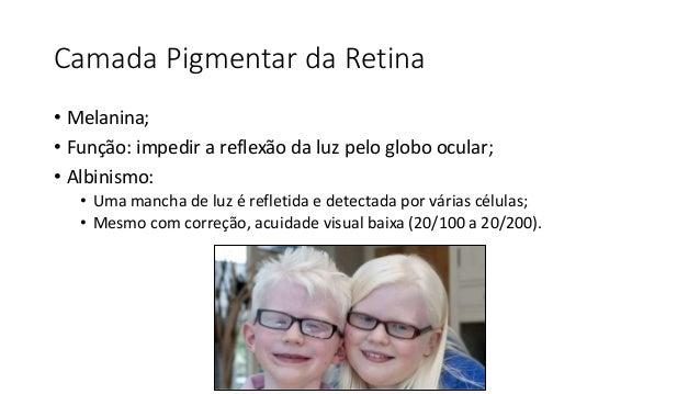 Camada Pigmentar da Retina • Melanina; • Função: impedir a reflexão da luz pelo globo ocular; • Albinismo: • Uma mancha de...