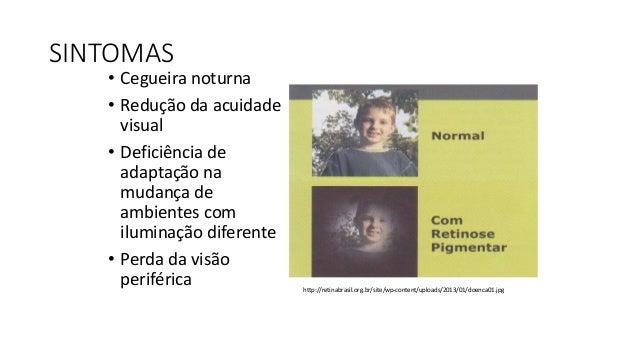 http://sites.uai.com.br/app/noticia/saudeplena/noticias/2013/10/02/noticia_saudeplena,145760/miss-minas-gerais-nao-de-deix...
