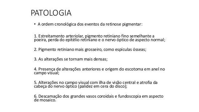 http://www.olhoclinica.com.br/images/noticias-artigos/Retinose_Pigmentar.jpg