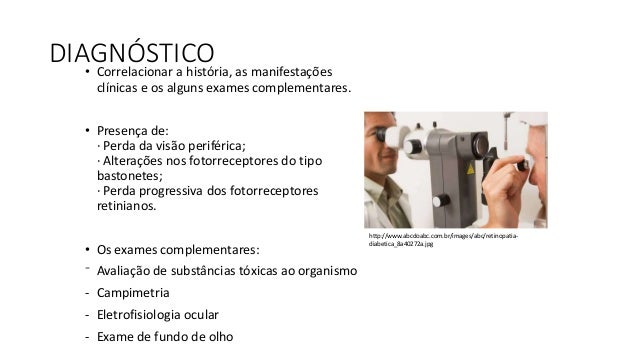 CAMPIMETRIA • Campimetria manual: É o exame do campo visual realizado com o campímetro manual (Goldmann). Permite um exame...