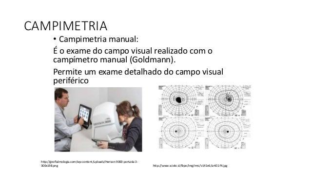 ELETROFISIOLOGIA OCULAR • A eletrooculografia (EOG) avalia a função pré-sináptica da retina, sendo assim qualquer condição...