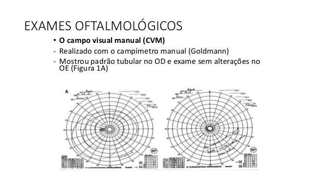 EXAMES OFTALMOLÓGICOS • A retinografia colorida - Utilizando o equipamento Spectralis (Heidelberg Engineering) - Evidencio...