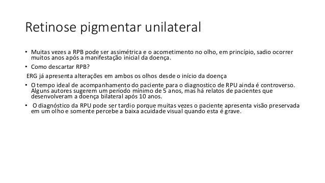 RETINOSE PIGMENTAR UNILATERAL Outras retinopatias pigmentares chamadas de pseudorretinoses podem simular RPU como, por exe...