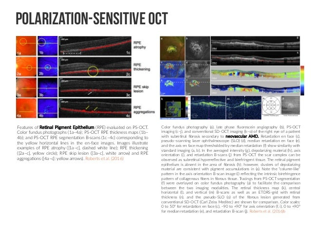 Shallow introduction for Deep Learning Retinal Image Analysis