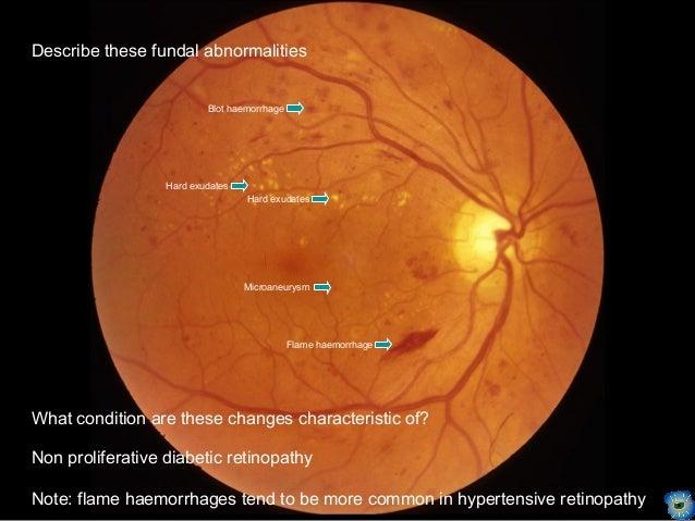 Retinal Conditions