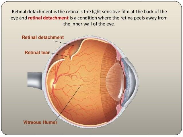 retinal detachment, Skeleton
