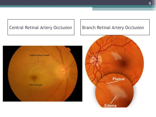 Central Retinal Artery Occlusion Anatomy