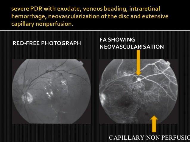 Retinal vein occlusions