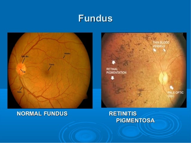 retinitis pigmentosa Retinitis pigmentosa (rp) is a group of inherited eye diseases that affect the light-sensitive part of the eye (retina) rp causes cells in the retina to die, causing progressive vision.