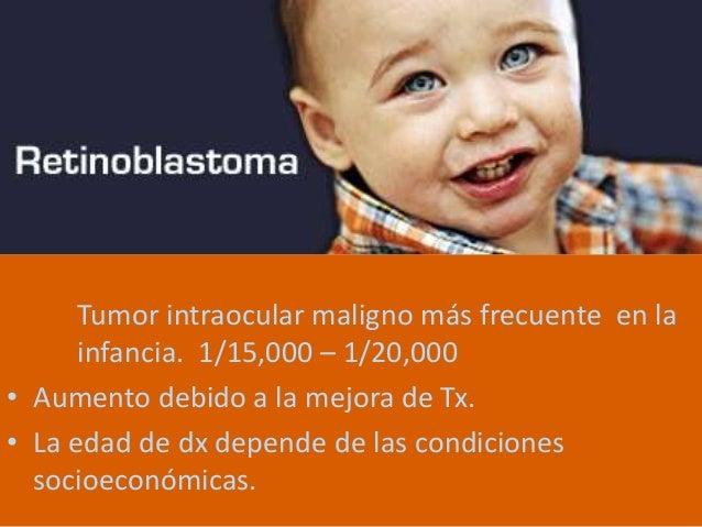 Retinoblastoma Slide 2