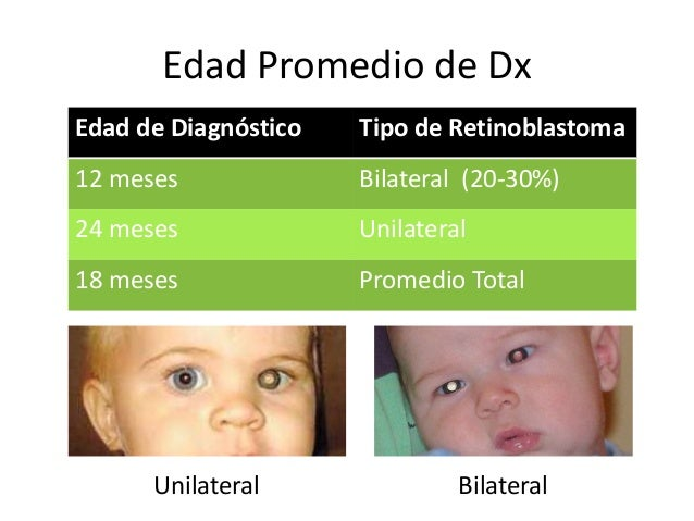 Retinoblastoma Slide 3
