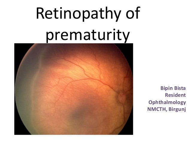 Retinopathy of prematurity Bipin Bista Resident Ophthalmology NMCTH, Birgunj