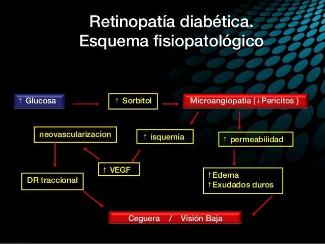Retinopatia diabetica proliferativa