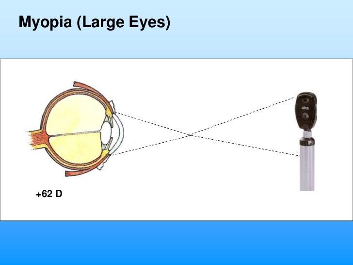 Myopia (Large Eyes)  +62 D