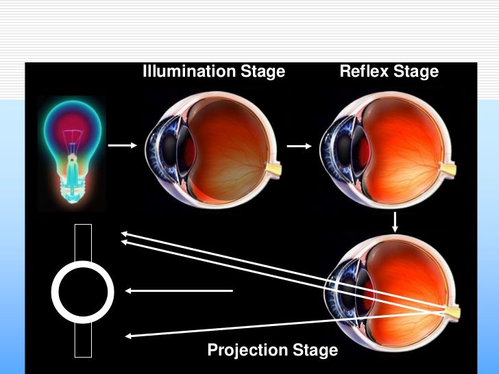 Illumination Stage         Reflex Stage        Projection Stage