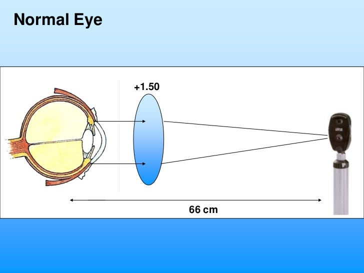 Normal Eye             +1.50                     66 cm