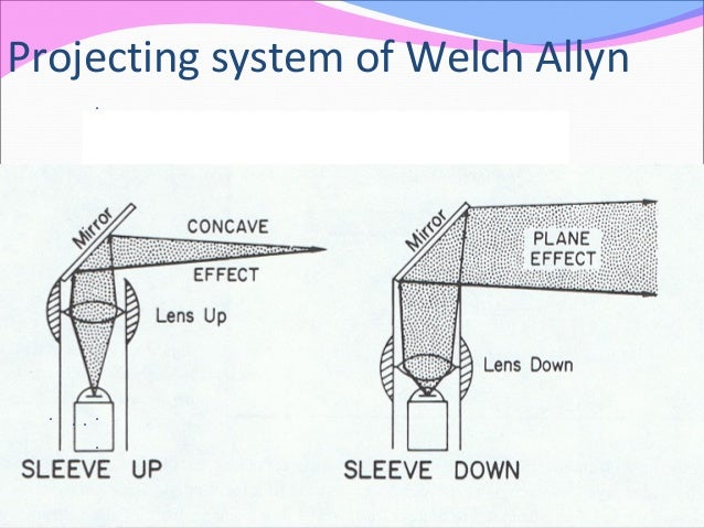 Projecting system of Welch Allyn . .... .