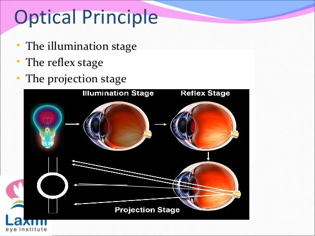 Optical Principle • The illumination stage • The reflex stage • The projection stage