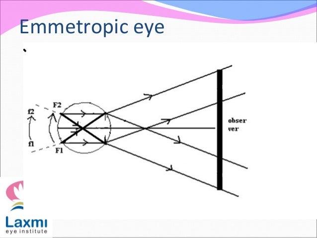 Emmetropic eye