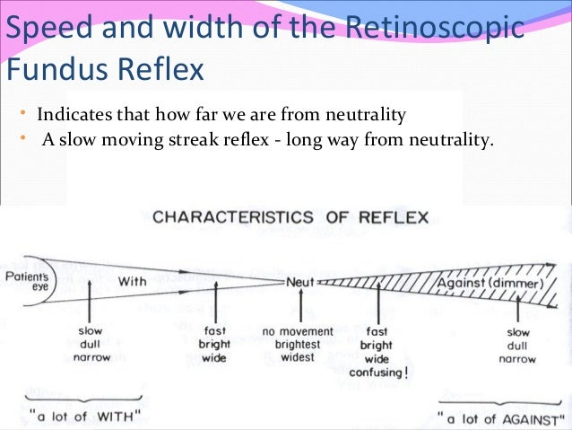 Speed and width of the Retinoscopic Fundus Reflex • Indicates that how far we are from neutrality • A slow moving streak r...