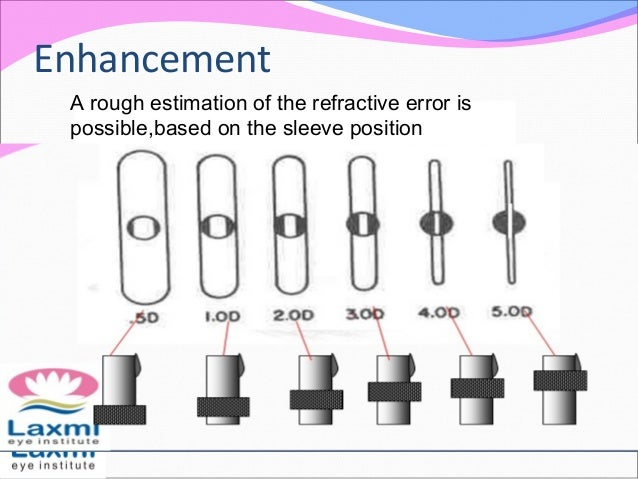 Enhancement A rough estimation of the refractive error is possible,based on the sleeve position