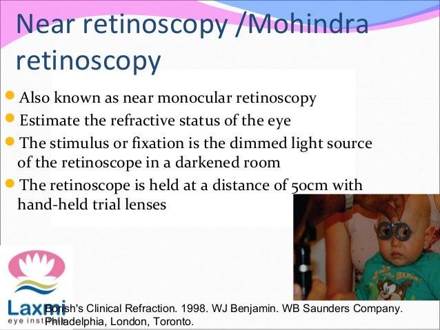Near retinoscopy /Mohindra retinoscopy Also known as near monocular retinoscopy Estimate the refractive status of the ey...