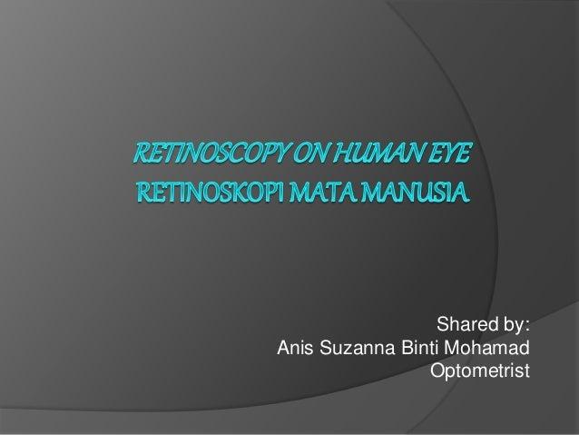 Shared by: Anis Suzanna Binti Mohamad Optometrist
