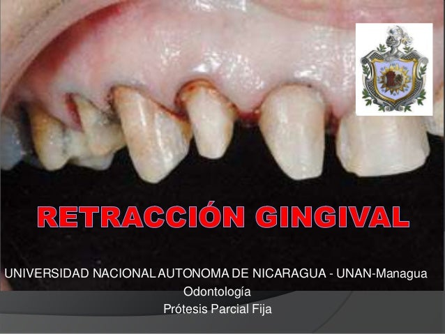 UNIVERSIDAD NACIONAL AUTONOMA DE NICARAGUA - UNAN-Managua Odontología Prótesis Parcial Fija